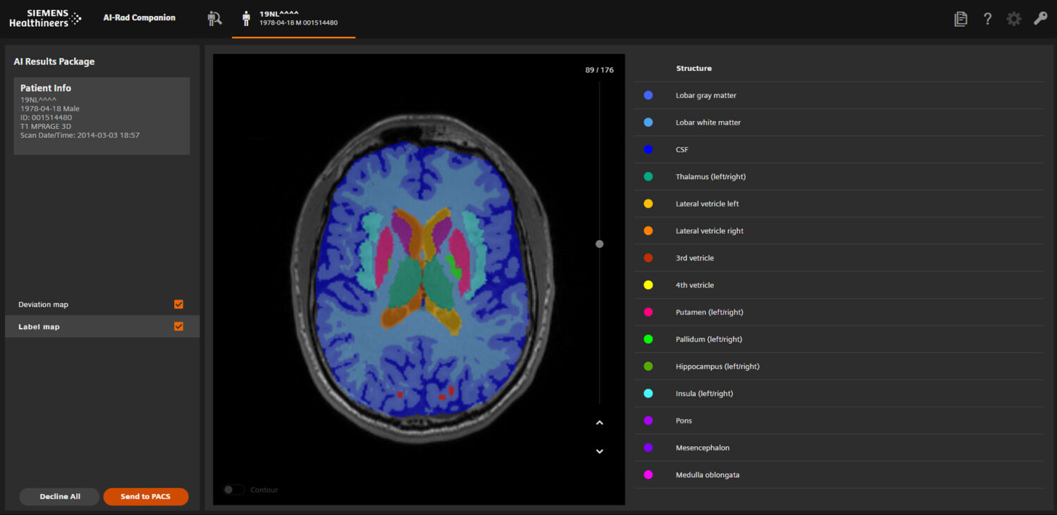 Front end of the radiology software for the extension Brain MR
